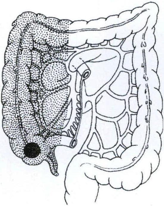 (图) 右半结肠切除范围